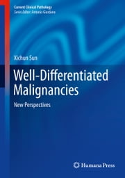 Well-Differentiated Malignancies - New Perspectives ebook by Xichun Sun