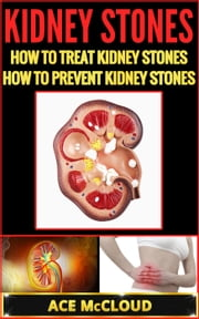 Kidney Stones: How To Treat Kidney Stones: How To Prevent Kidney Stones ebook by Ace McCloud