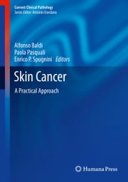 Skin Cancer - A Practical Approach ebook by