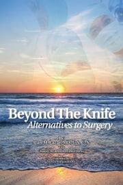 Beyond The Knife ebook by Alan M. Lazar MD FACS,Maury M. Breecher PhD MPH