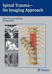Spinal Trauma - An Imaging Approach ebook by Herwig Imhof,Victor N. Cassar-Pullicino