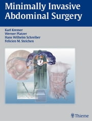 Minimally Invasive Abdominal Surgery - Laparascopic and Thoracic Surgery ebook by Karl Kremer, Werner Platzer, Hans Wilhelm Schreiber