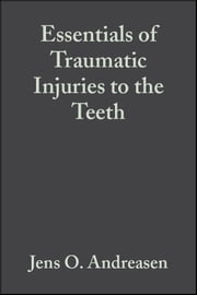 Essentials of Traumatic Injuries to the Teeth - A Step-by-Step Treatment Guide ebook by Jens O. Andreasen,Frances M. Andreasen
