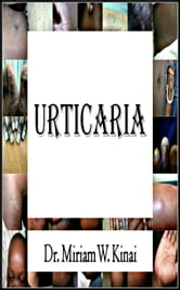Urticaria ebook by Miriam Kinai