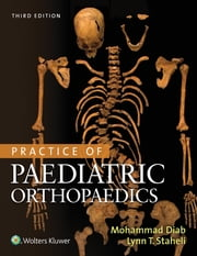 Practice of Paediatric Orthopaedics ebook by Mohammad Diab,Lynn T. Staheli