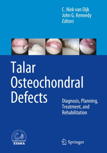 Talar Osteochondral Defects - Diagnosis, Planning, Treatment, and Rehabilitation ebook by