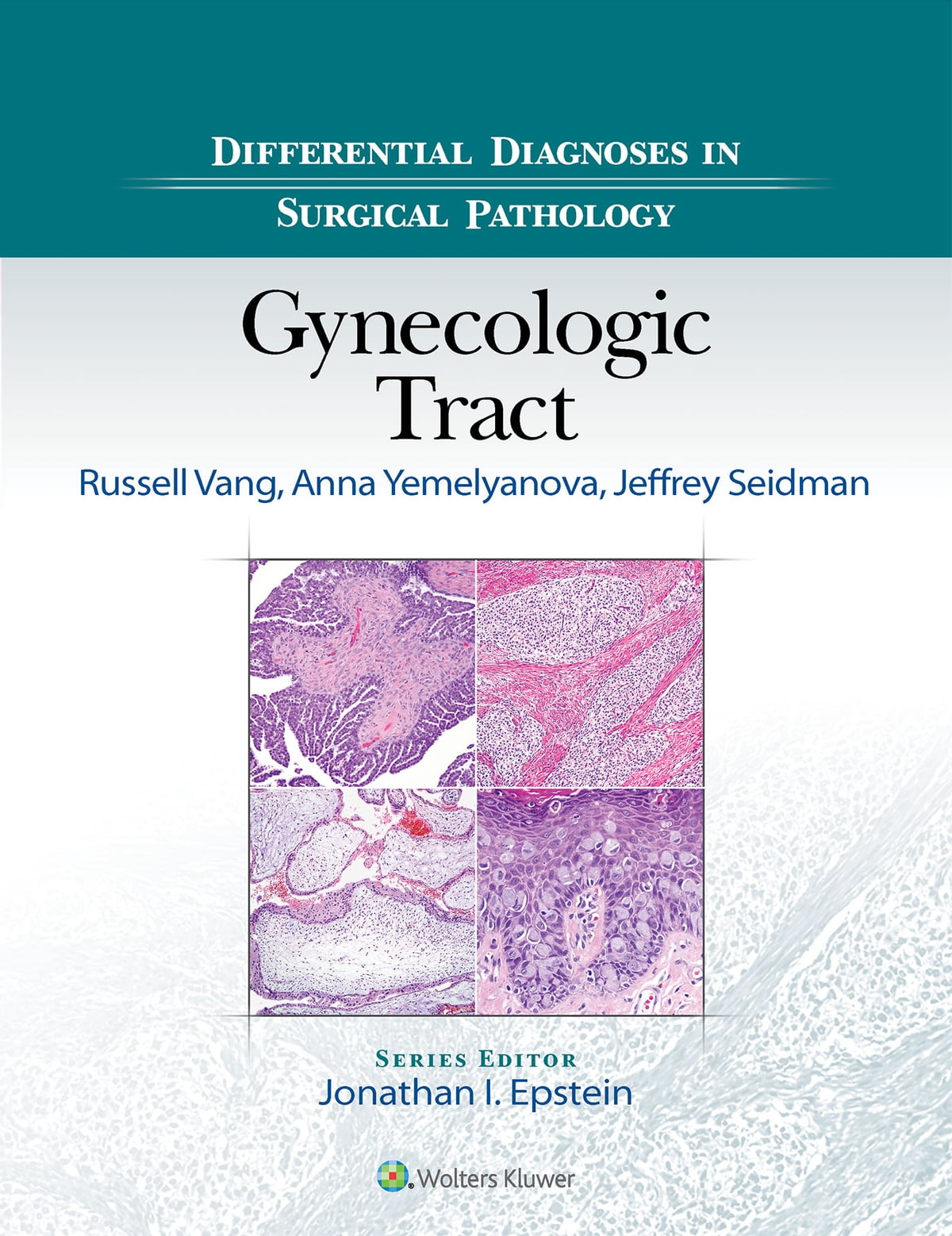 Differential Diagnoses In Surgical Pathology Gynecologic Tract Ebook By Russell Vang 9781496332967 Rakuten Kobo Greece