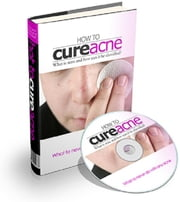 How To Cure Acne ebook by Anonymous