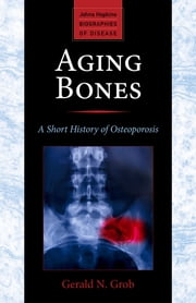 Aging Bones - A Short History of Osteoporosis ebook by Gerald N. Grob
