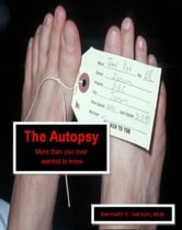 The Autopsy: More than you ever wanted to know ebook by Kenneth Iserson