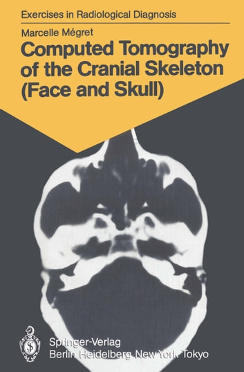 Computed Tomography of the Cranial Skeleton (Face and Skull) - 58 Radiological Exercises for Students and Practitioners ebook by Marcelle Megret