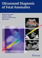 Ultrasound Diagnosis of Fetal Anomalies ebook by Michael Entezami,Matthias Albig,Adam Gasiorek-Wiens