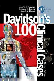 Davidson's 100 Clinical Cases ebook by Mark Strachan,Surendra K. Sharma,John A. A. Hunter