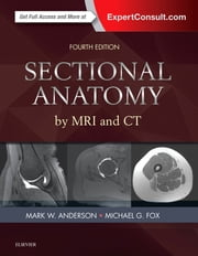 Sectional Anatomy by MRI and CT ebook by Mark W. Anderson,Michael G Fox