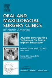 Alveolar Bone Grafting Techniques in Dental Implant Preparation, An Issue of Oral and Maxillofacial Surgery Clinics ebook by Peter Waite