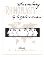 Secondary Rhinoplasty by the Global Masters ebook by Rod Rohrich,Jamil Ahmad