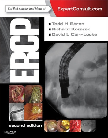 ERCP E-Book ebook by Todd H. Baron, MD, FASGE,Richard A. Kozarek, MD, FASGE,David Leslie Carr-Locke, MD, FRCP, FACG, FASGE