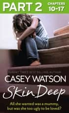 Skin Deep: Part 2 of 3: All she wanted was a mummy, but was she too ugly to be loved? ebook by Casey Watson