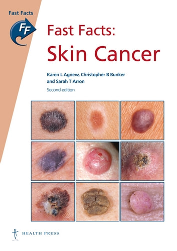 Fast Facts: Skin Cancer ebook by Karen L Agnew, MBChB FRACP,Christopher B Bunker, MA MD FRCP,Sarah T Arron, MD PhD