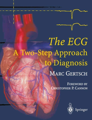 The ECG - A Two-Step Approach to Diagnosis ebook by Marc Gertsch