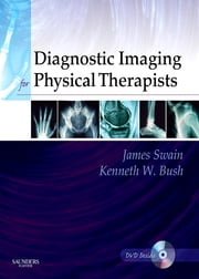 Diagnostic Imaging for Physical Therapists ebook by James Swain,Kenneth W. Bush,Juliette Brosing