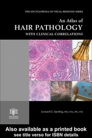 An Atlas of Hair Pathology with Clinical Correlations ebook by Sperling, Leonard C.