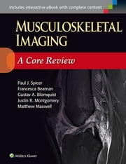 Musculoskeletal Imaging: A Core Review ebook by Paul Spicer