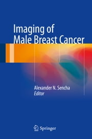 Imaging of Male Breast Cancer ebook by Alexander N. Sencha