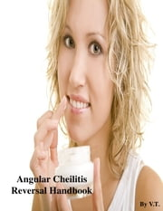 Angular Cheilitis Reversal Handbook ebook by V.T.