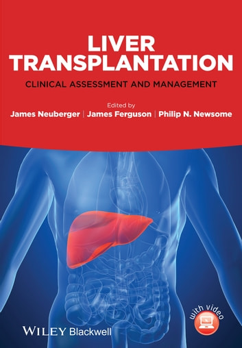Liver Transplantation - Clinical Assessment and Management ebook by