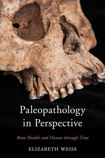 Paleopathology in Perspective - Bone Health and Disease through Time ebook by Elizabeth Weiss