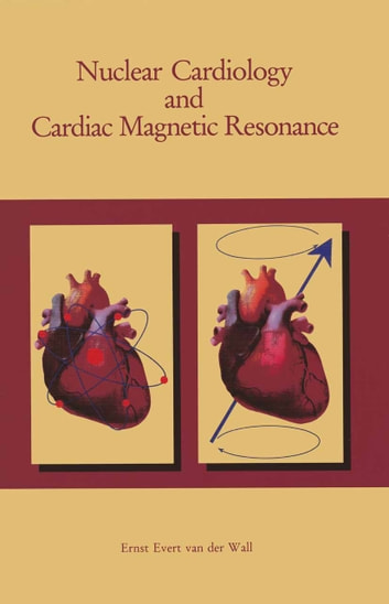 Nuclear Cardiology and Cardiac Magnetic Resonance - Physiology, Techniques and Applications ebook by Ernst E. van der Wall