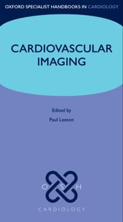 Cardiovascular Imaging ebook by Paul Leeson