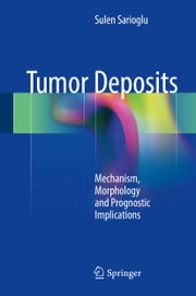 Tumor Deposits - Mechanism, Morphology and Prognostic Implications ebook by Sulen Sarioglu