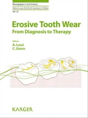 Erosive Tooth Wear: From Diagnosis to Therapy ebook by Lussi, A.