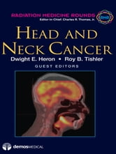 Head and Neck Cancer ebook by Dwight E. Heron, MD,Roy B. Tishler, MD,Charles R. Thomas Jr., MD