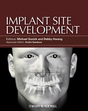 Implant Site Development ebook by Michael Sonick,Debby Hwang