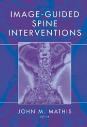 Image-Guided Spine Interventions ebook by John M. Mathis