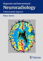 Diagnostic and Interventional Neuroradiology ebook by Klaus Sartor, G. Albrecht, K.-R. Atzor