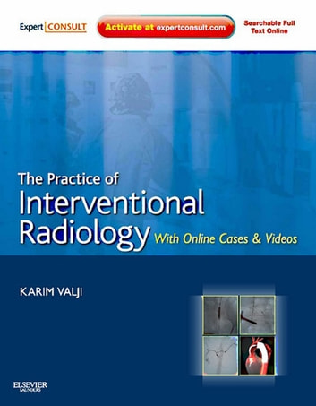 The Practice of Interventional Radiology, with Online Cases and Video E-Book - Expert Consult Premium Edition - Enhanced Online Features ebook by Karim Valji, MD