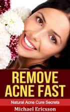 Remove Acne Fast: Natural Acne Cure Secrets ebook by Dr. Michael Ericsson