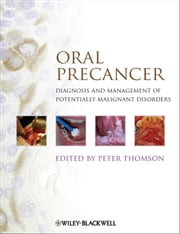 Oral Precancer - Diagnosis and Management of Potentially Malignant Disorders ebook by Peter Thomson
