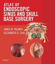 Atlas of Endoscopic Sinus and Skull Base Surgery ebook by Kobo.Web.Store.Products.Fields.ContributorFieldViewModel