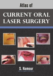 Atlas of Current Oral Laser Surgery ebook by Namour, S.