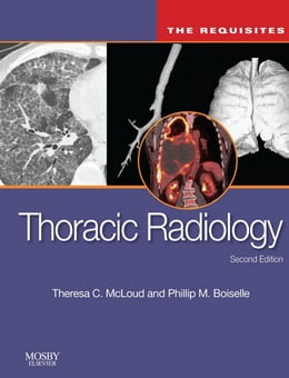 Book Thoracic Radiology: The Requisites E-Book by Theresa C. McLoud, MD