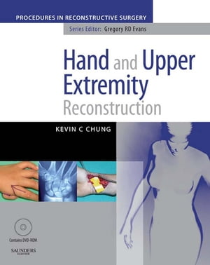 Hand And Upper Extremity Reconstruction A Volume in the Procedures in Reconstructive Surgery Series