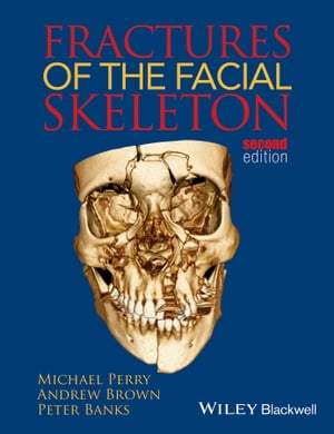 Fractures of the Facial Skeleton