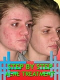 Step By Step Acne Treatment 40bdf5bc-5970-4217-80ed-021bfa82d8a0