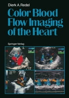 Color Blood Flow Imaging of the Heart by Dierk A. Redel