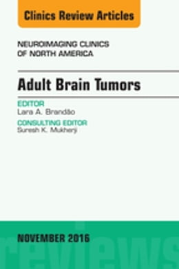 Book Adult Brain Tumors, An Issue of Neuroimaging Clinics of North America, by Lara A. Brandao
